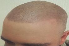Hairline Inc Ltd.