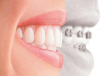 Global Dental Clinic - Dental Implants Center In Ahmedabad